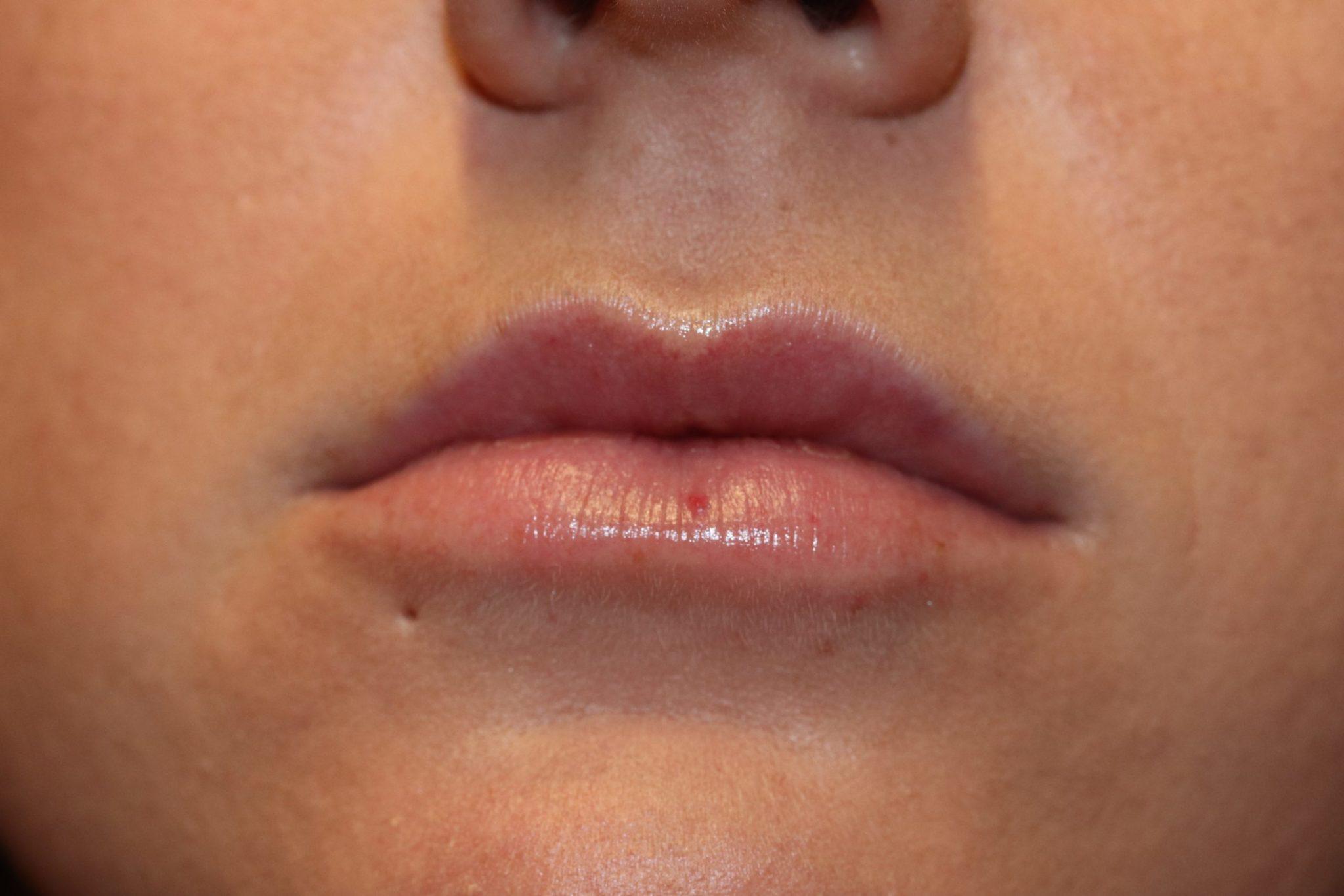 BS lip filler after1