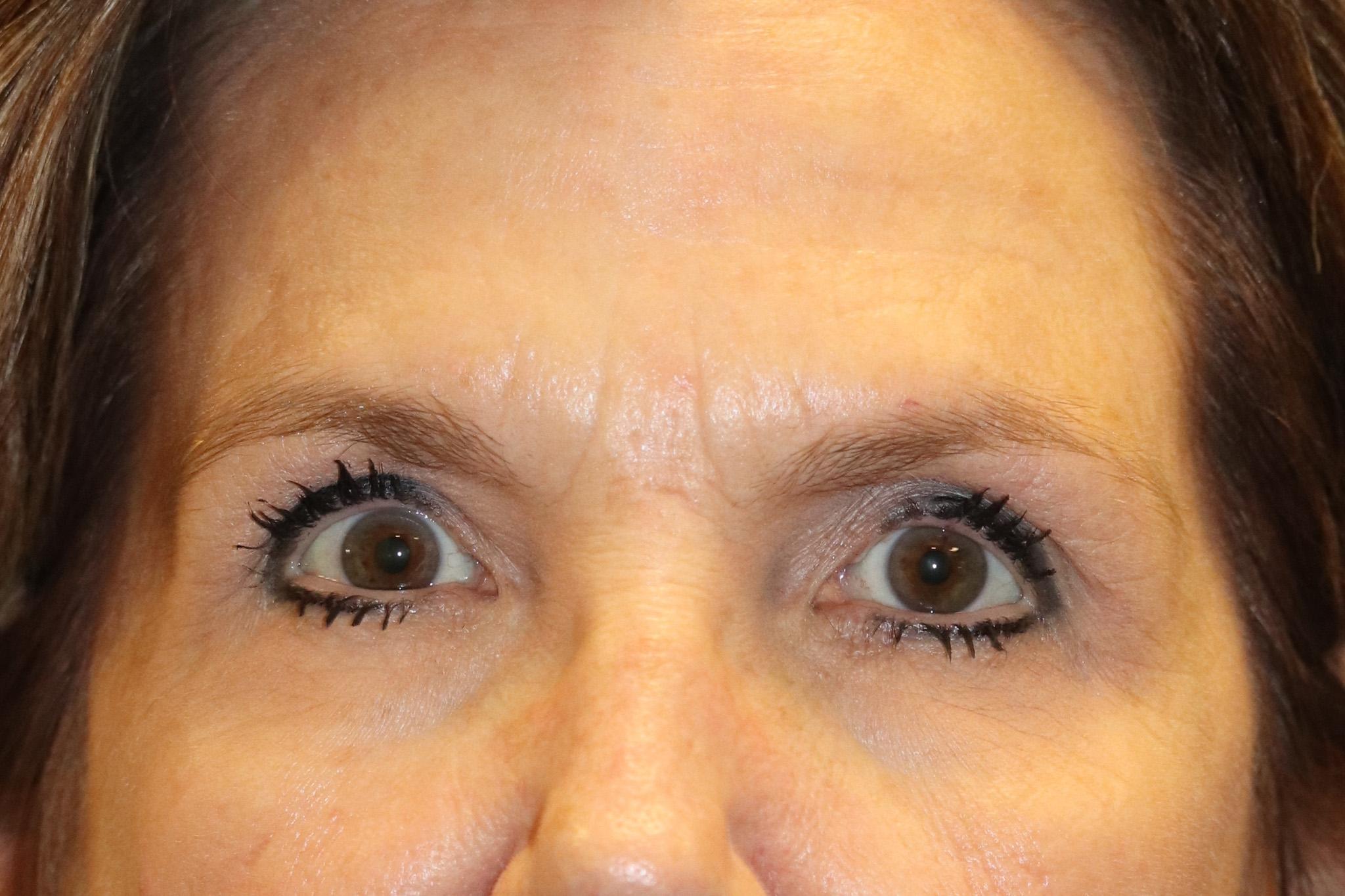 MP brow botox post