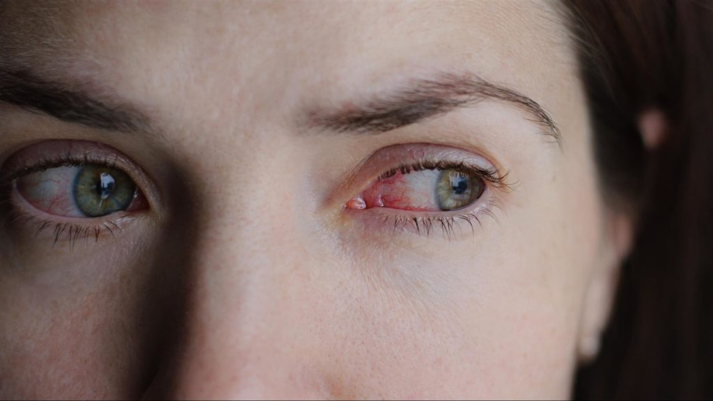 women with red eyes