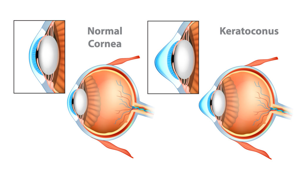 Chart comparing details of normal cornea and keratoconus