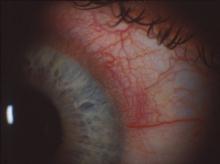 Image of red ring around the cornea